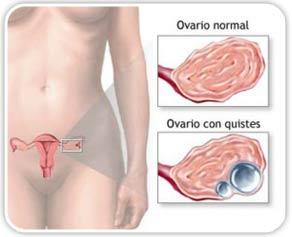 Quistes en los ovarios