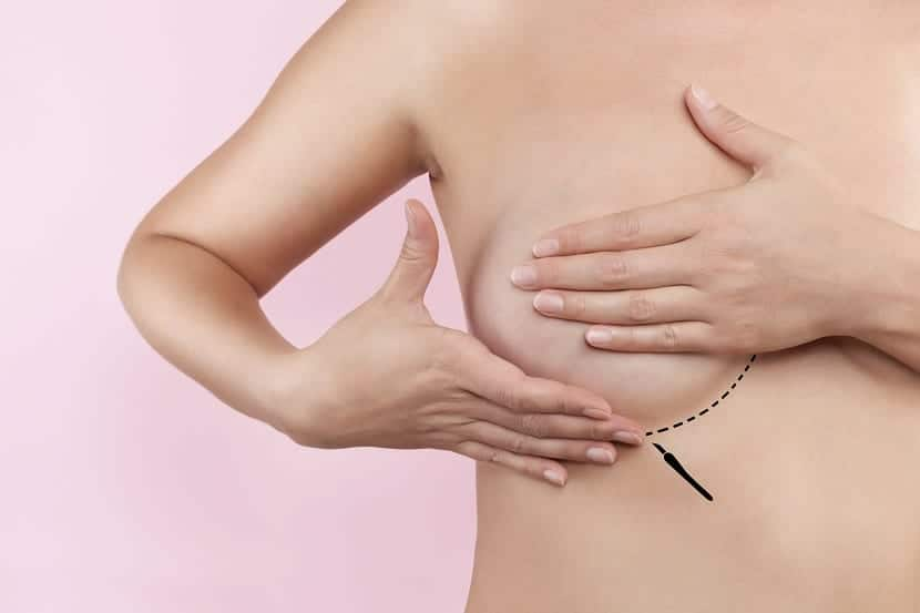 Cirugía de pechos