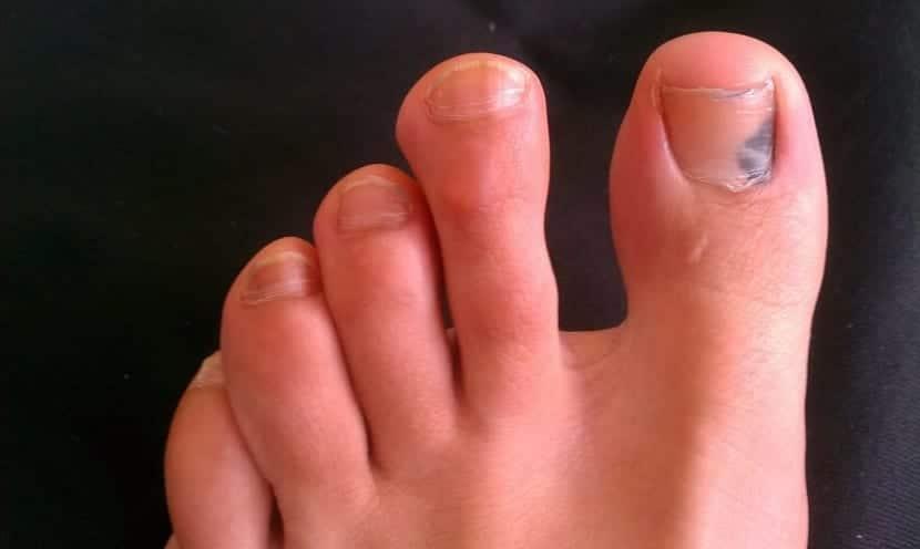 Uña negra en el pie