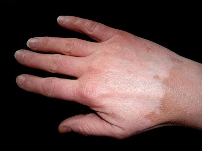 despigmentacion-piel