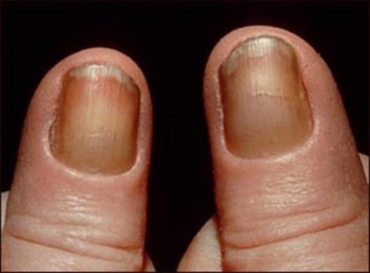Alteraciones cosméticas de las uñas