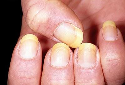 Cromoniquia, la coloración de las uñas