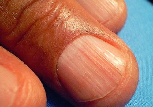 Estrías longitudinales de las uñas