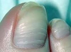 Estrías transversales de las uñas