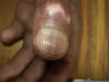 Pigmentación y depresiones de las uñas
