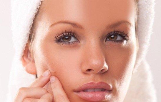 eliminar-acne