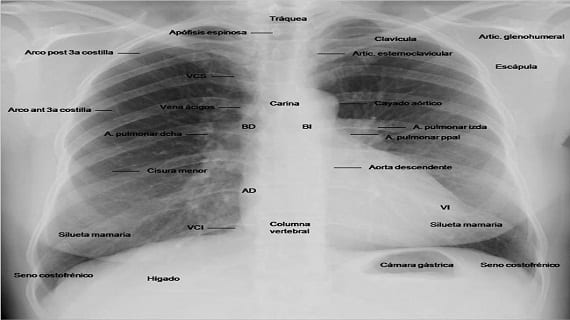 costillas-radiografia