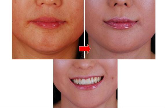 cirugía sonrisa 6