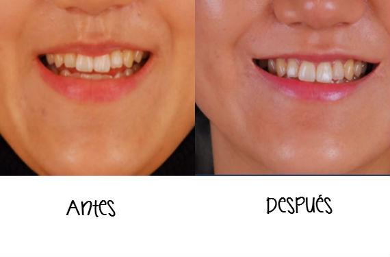cirugía sonrisa
