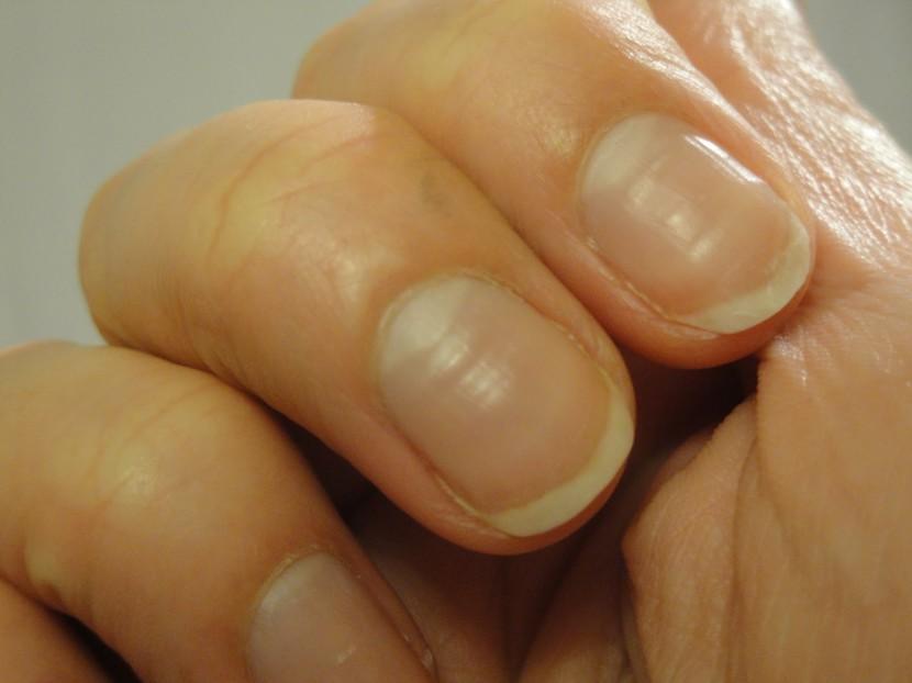 estrias uñas horizontales