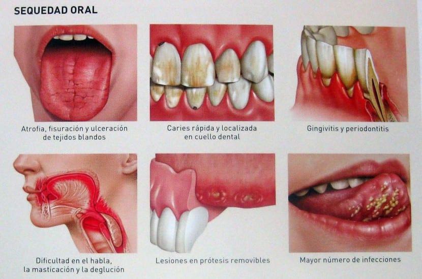alcohol la salud de los dientes