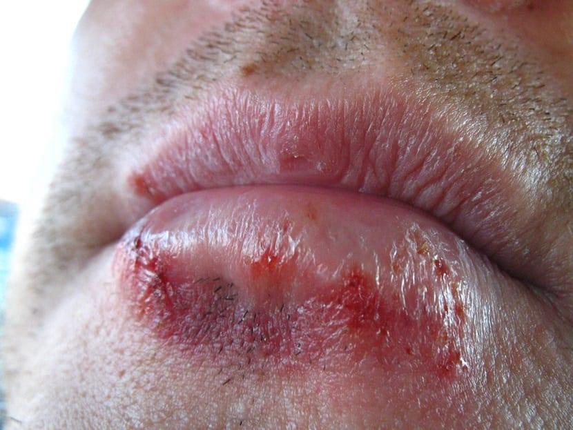 herpes boca