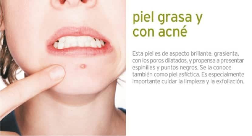 piel-grasa-acne