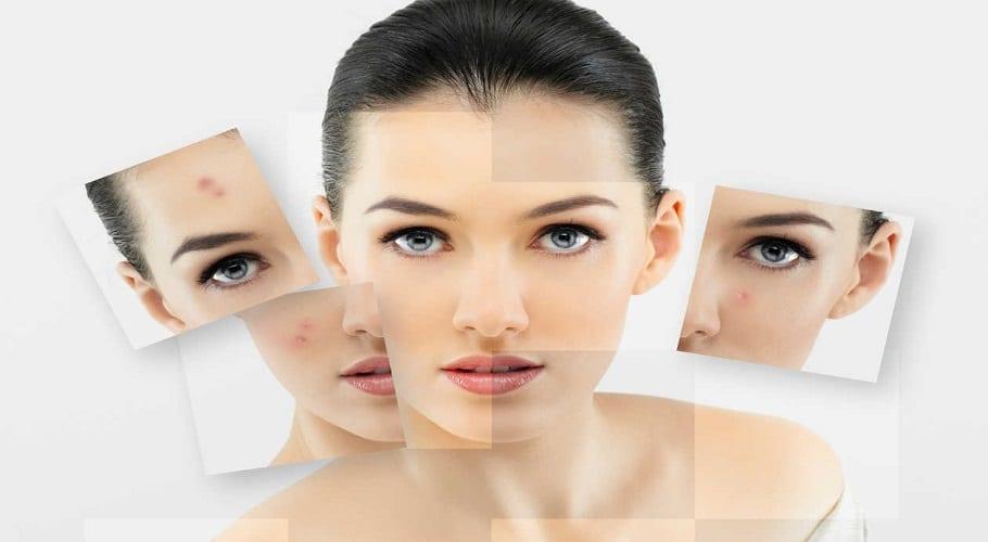 Alimentos-prohibidos-para-evitar-el-acne-3