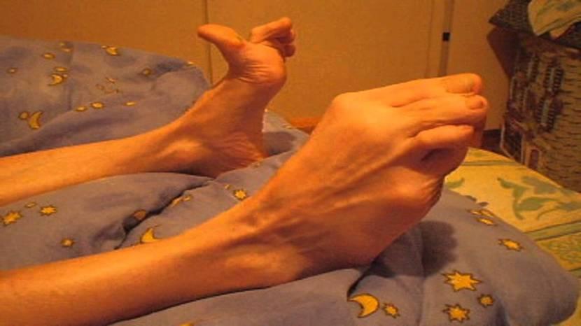 Síndrome de Guillian-Barré