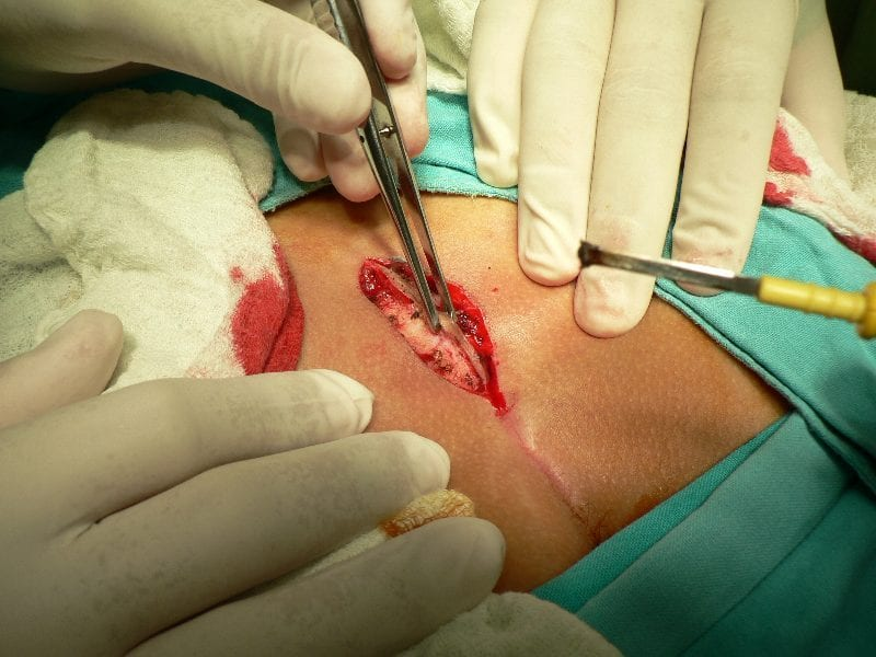 La fístula sacroxígea
