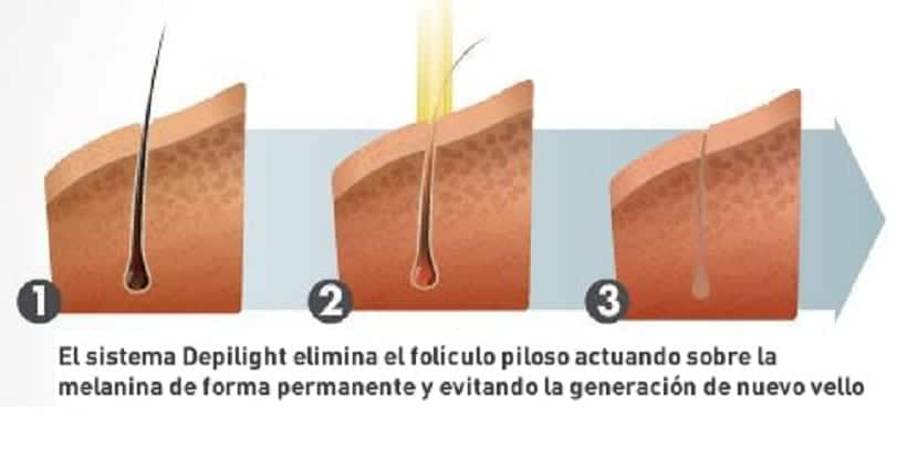 depilacion-laser (1)
