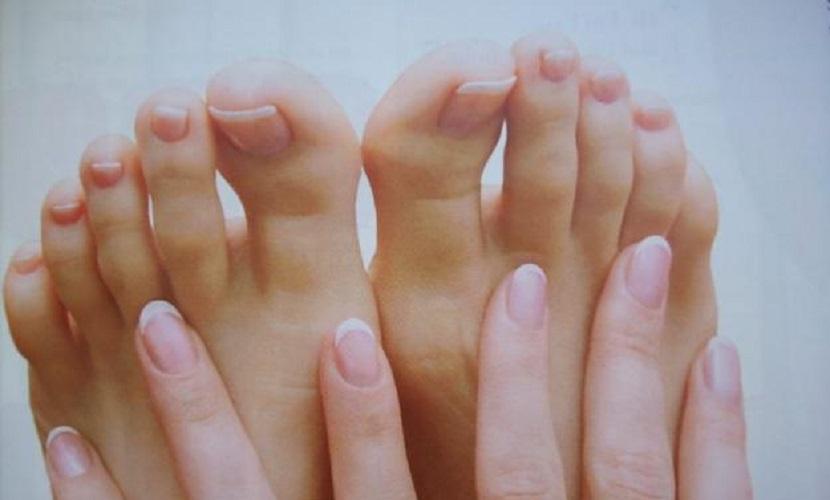 Hongos uñas pies y manos