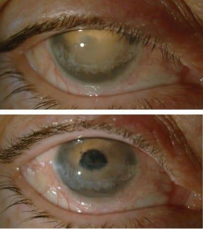 manchas blancas pupilas