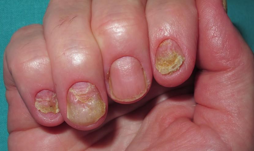 Enfermedades comunes en las uñas