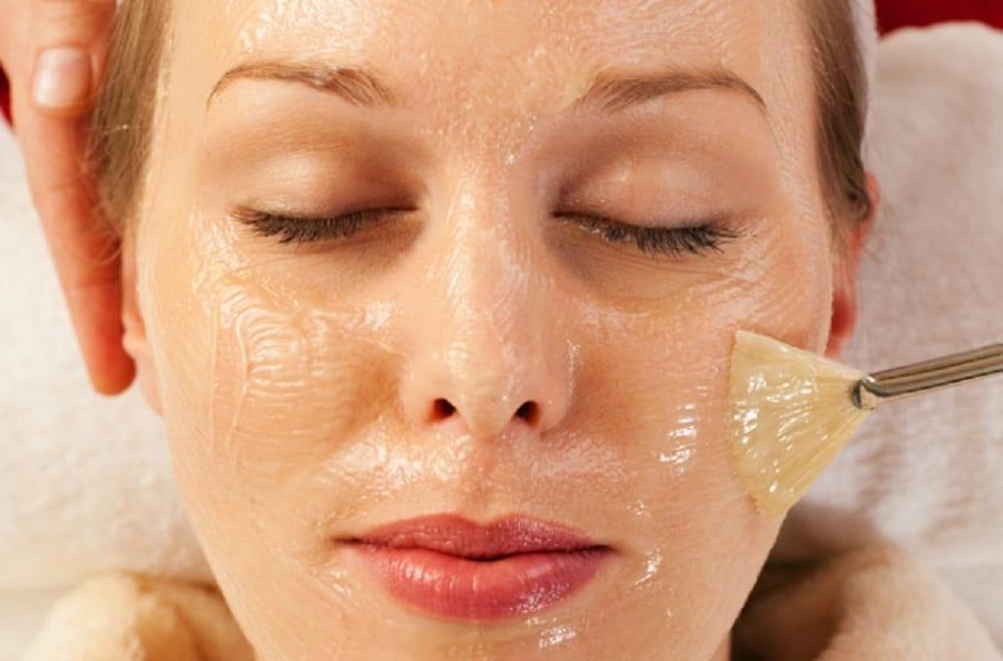 peeling-quimico-