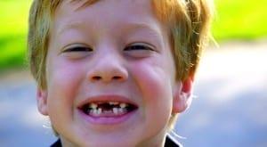 primer diente