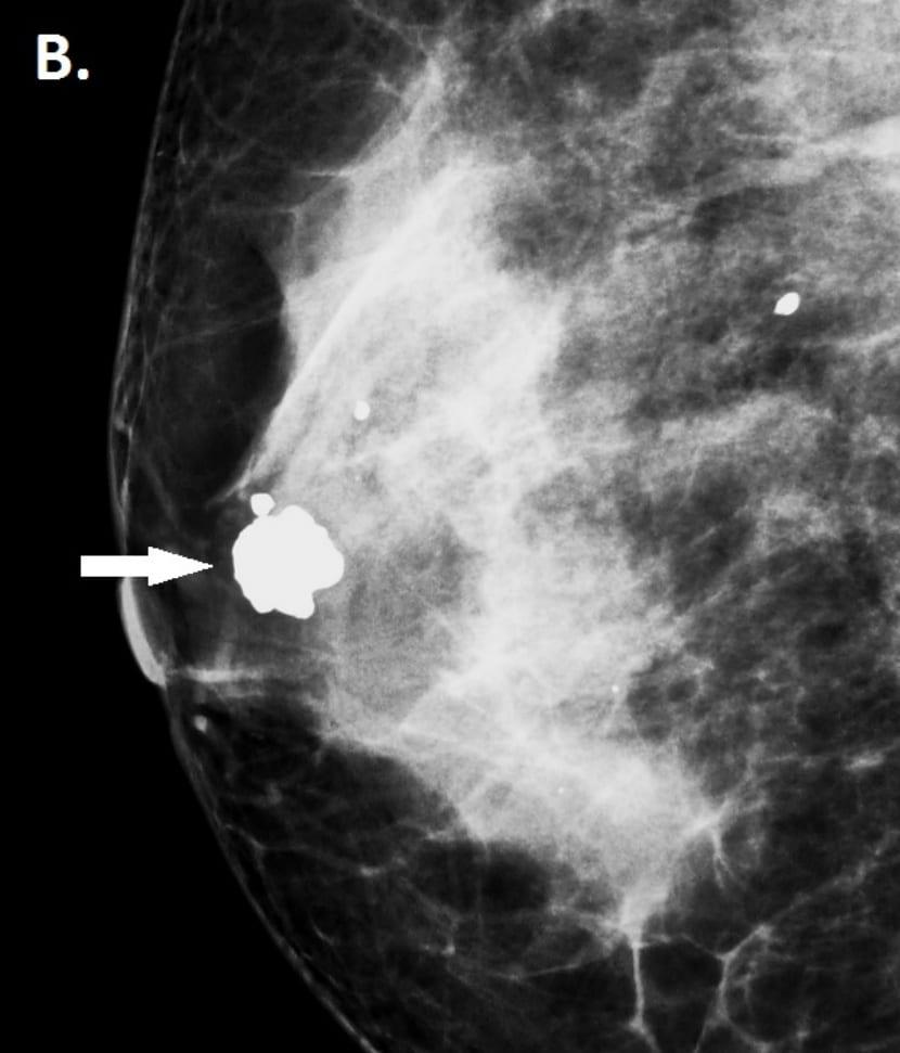 fibroadenoma 2