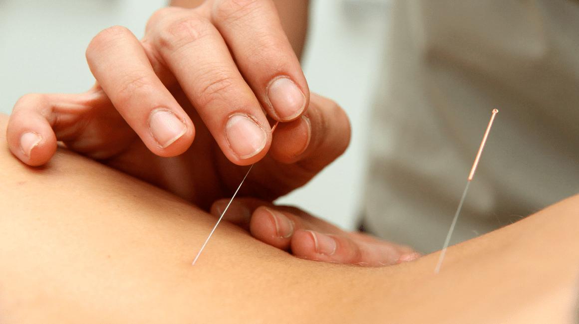Acupuntura para el dolor menstrual