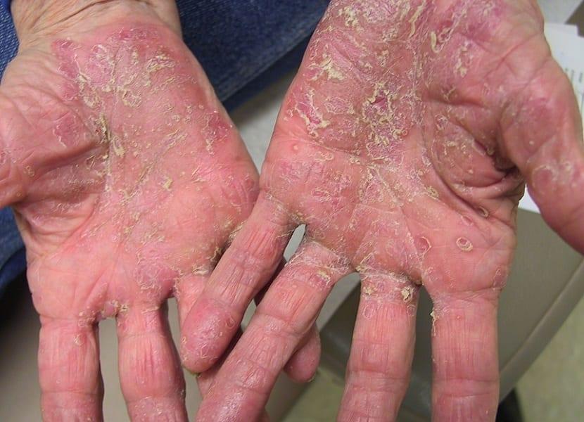 Cómo afecta la psoriasis en nuestras manos y uñas 2