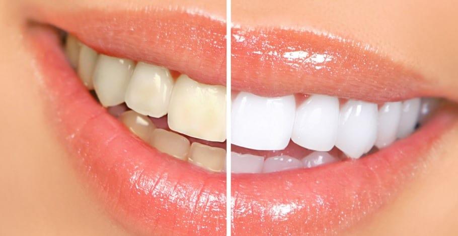 Blanquear tus dientes 1