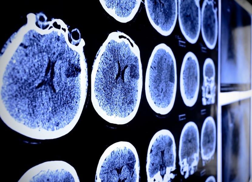 Imágenes de radiografía del cerebro