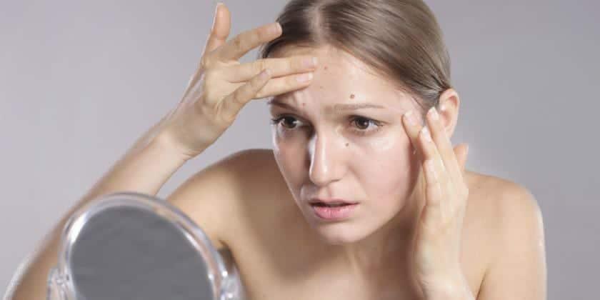 acné de la cara