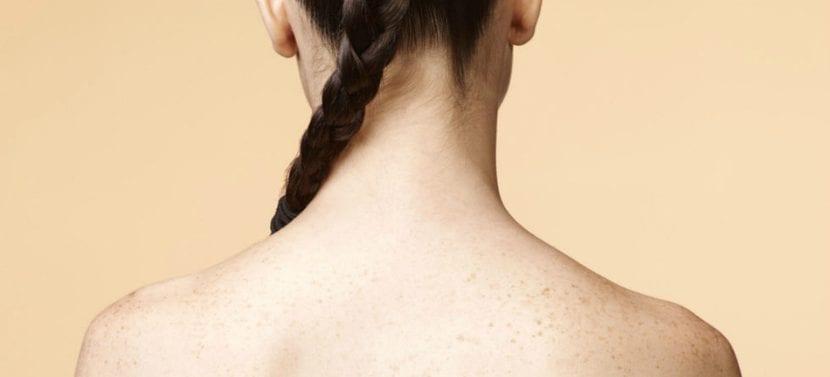 Espalda con acné