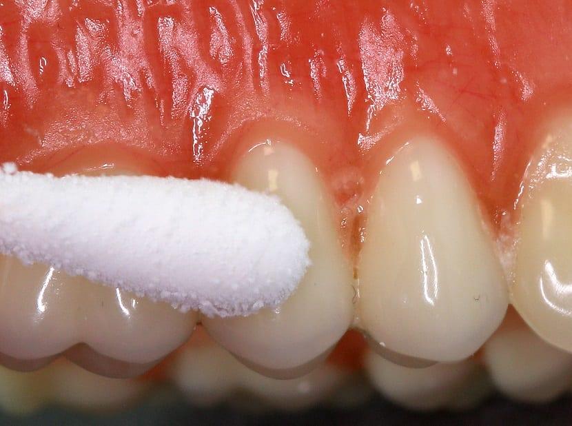 Qué es la gingivitis