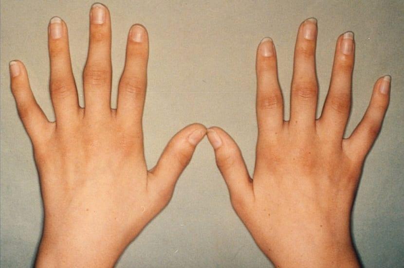 artrosis y artritis en las manos
