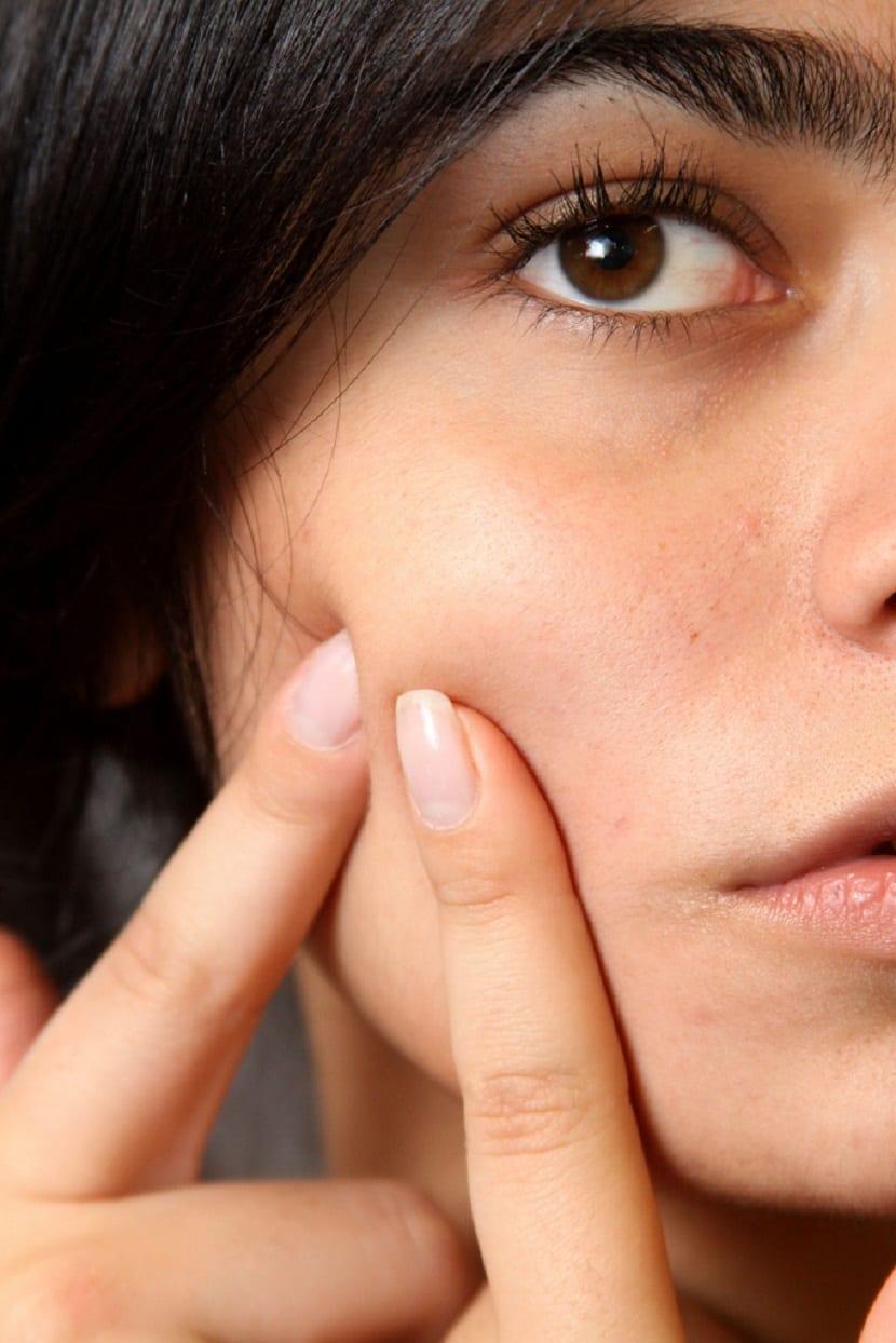 Cómo eliminar un grano del rostro