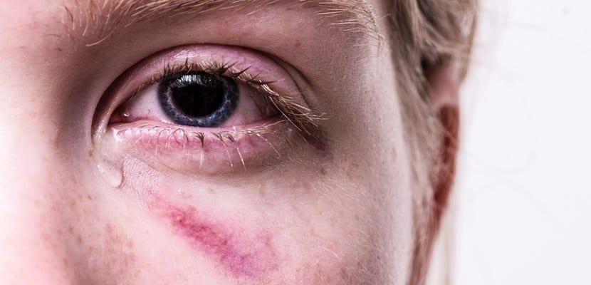 mujer con golpes en el ojo