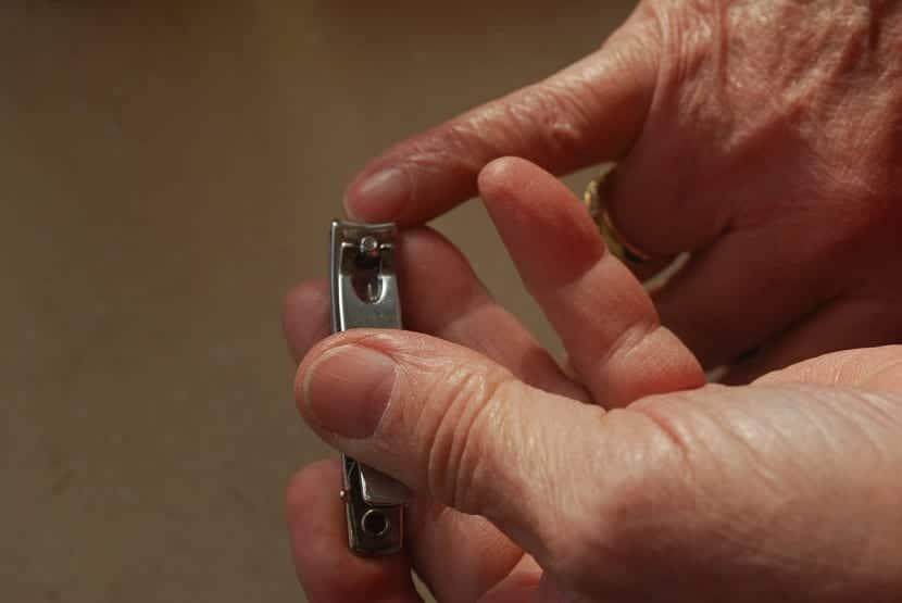 Causas de estrías en uñas