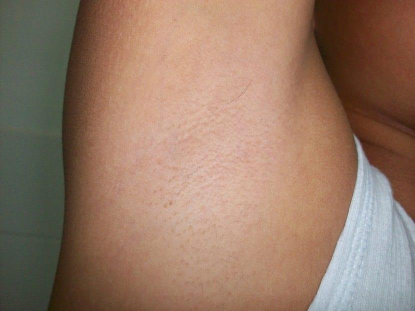 Consejos para depilar axilas
