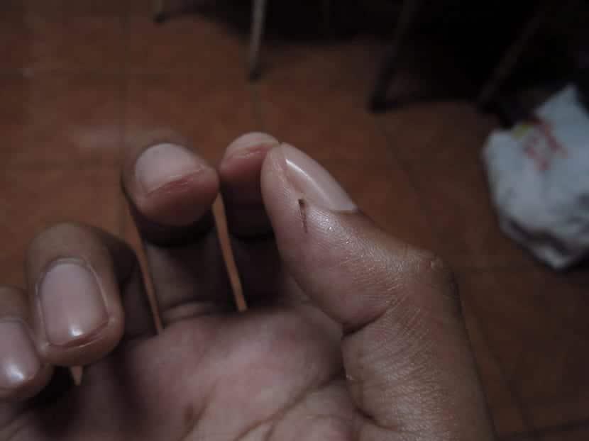 retirar astilla de los dedos