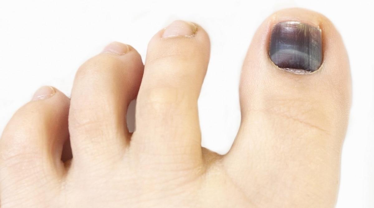 Distintas formas de tener una uña negra.
