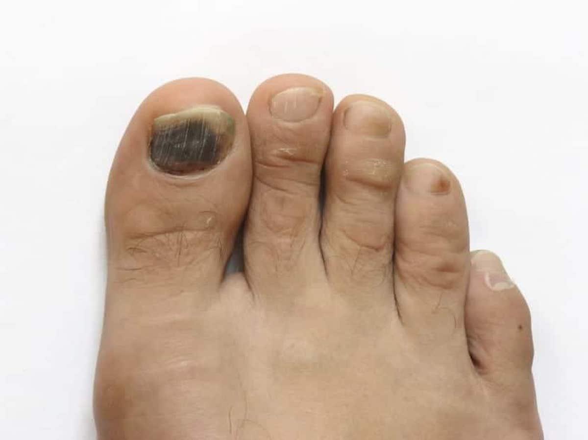 Las uñas negras son más frecuentes en los pies.
