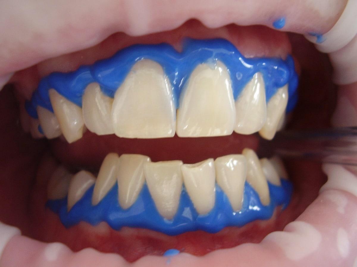 Tratamiento dental para blanquear los dientes.