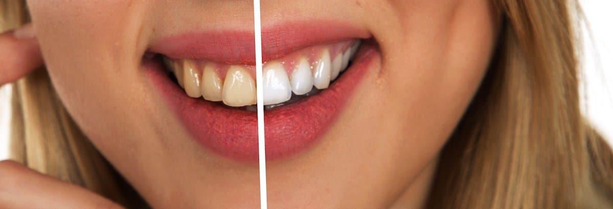 Los tratamientos dentales son seguros.