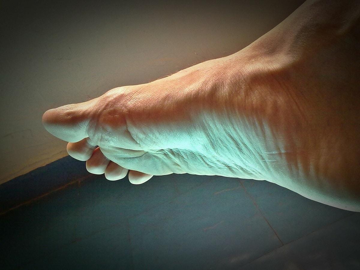 Tipos de verrugas que aparecen en los pies