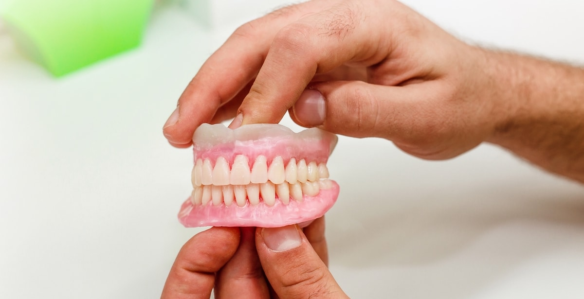 La periodontitis hace perder dientes.