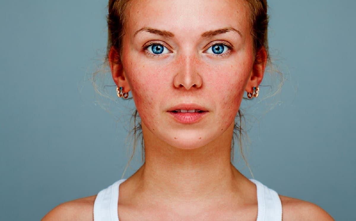 Rosácea facial