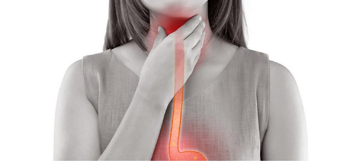 Síntomas de faringitis