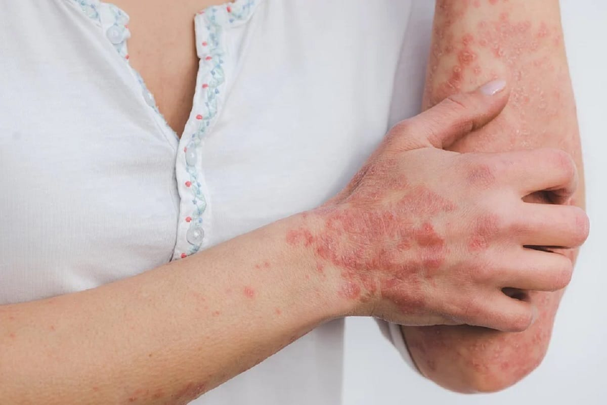 Inflamación crónica, psoriasis