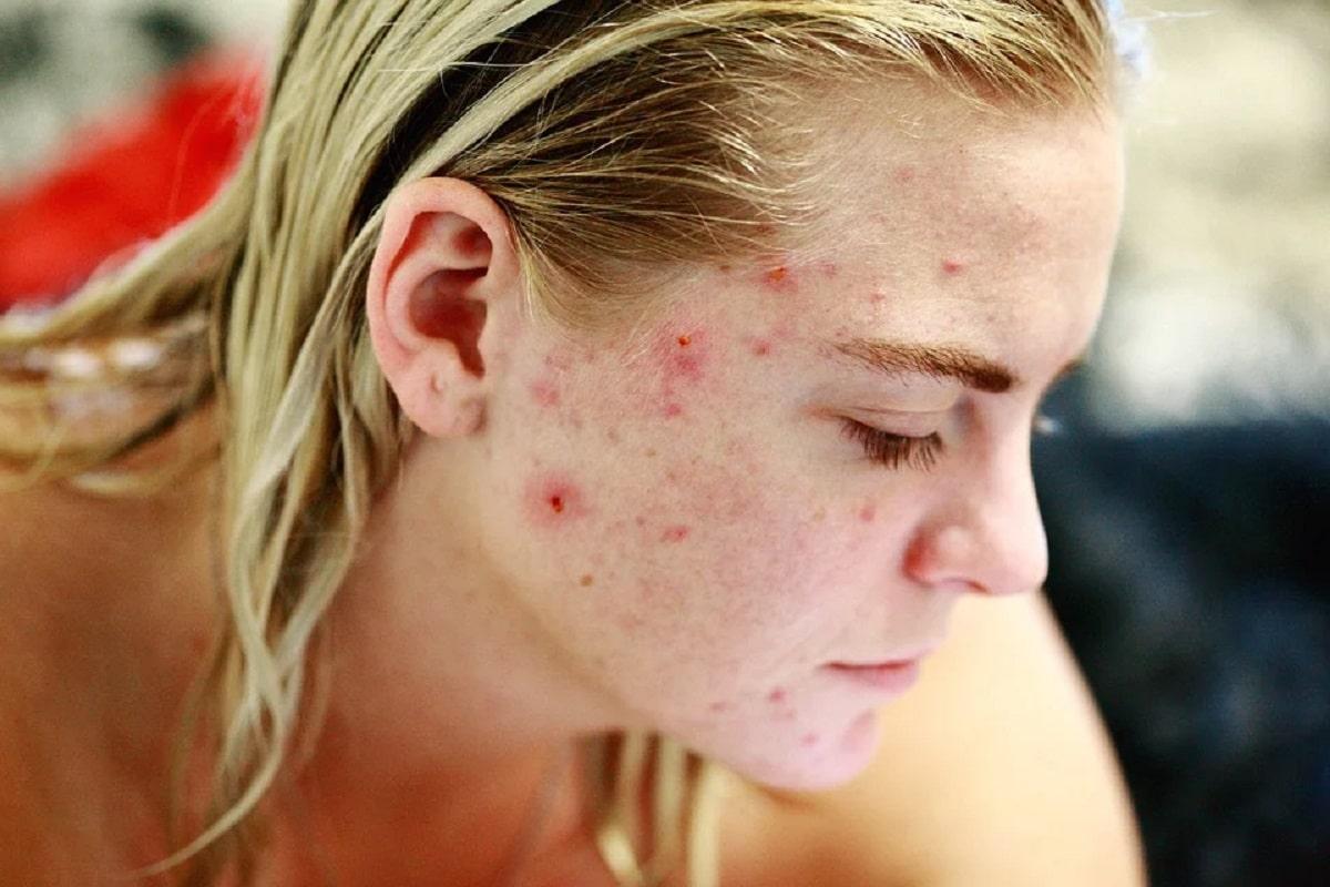 Malos hábitos que provocan acné